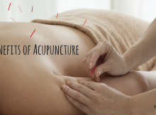 the_benefits_of_acupuncture